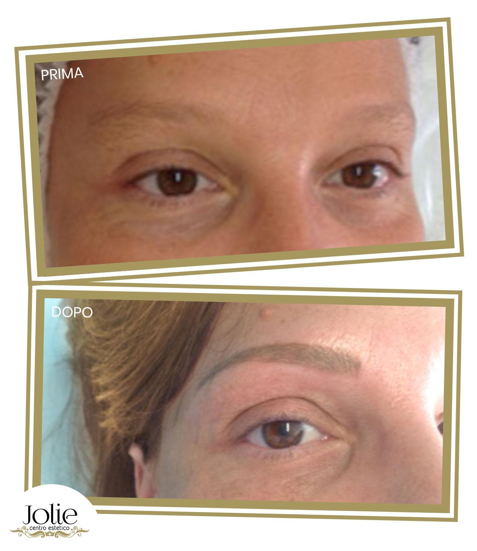 Dermopigmentazione-bergamo