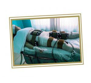 Centro-Jolie-trattamento-Xilia